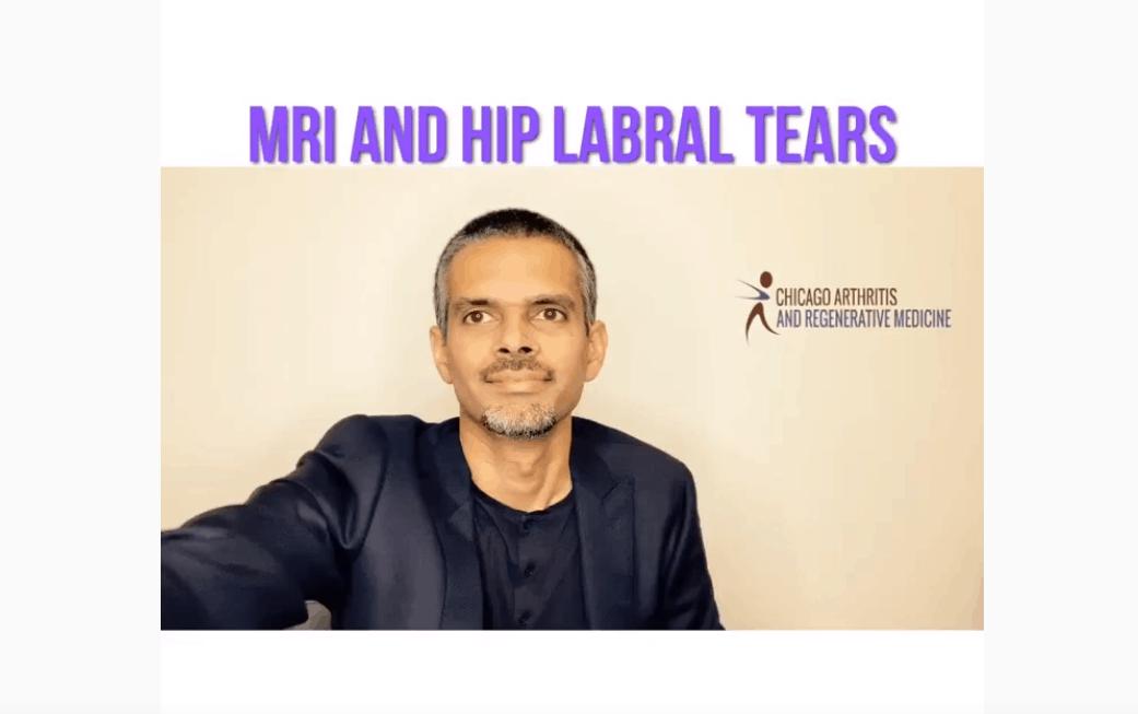 MRI & Hip Labral Tears