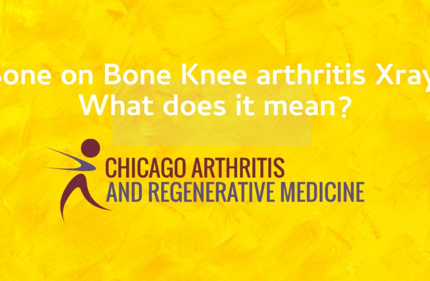 Bone on Bone Knee Arthritis on Xray- What does that mean?